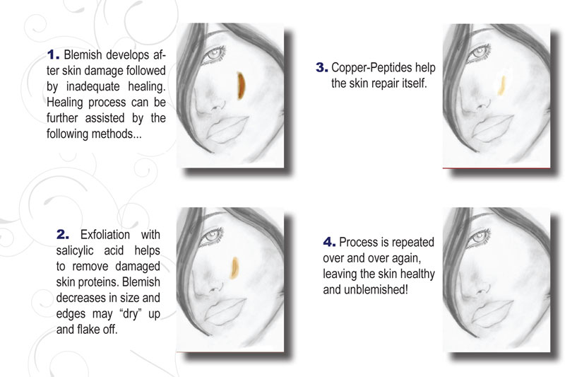 scar remodeling process