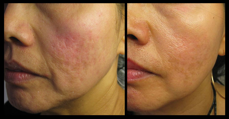 Tretinoin Before And After Photos